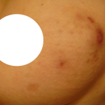 large mark is from direct moxibustion(once), two small holes are from core needle biopsy(once)
